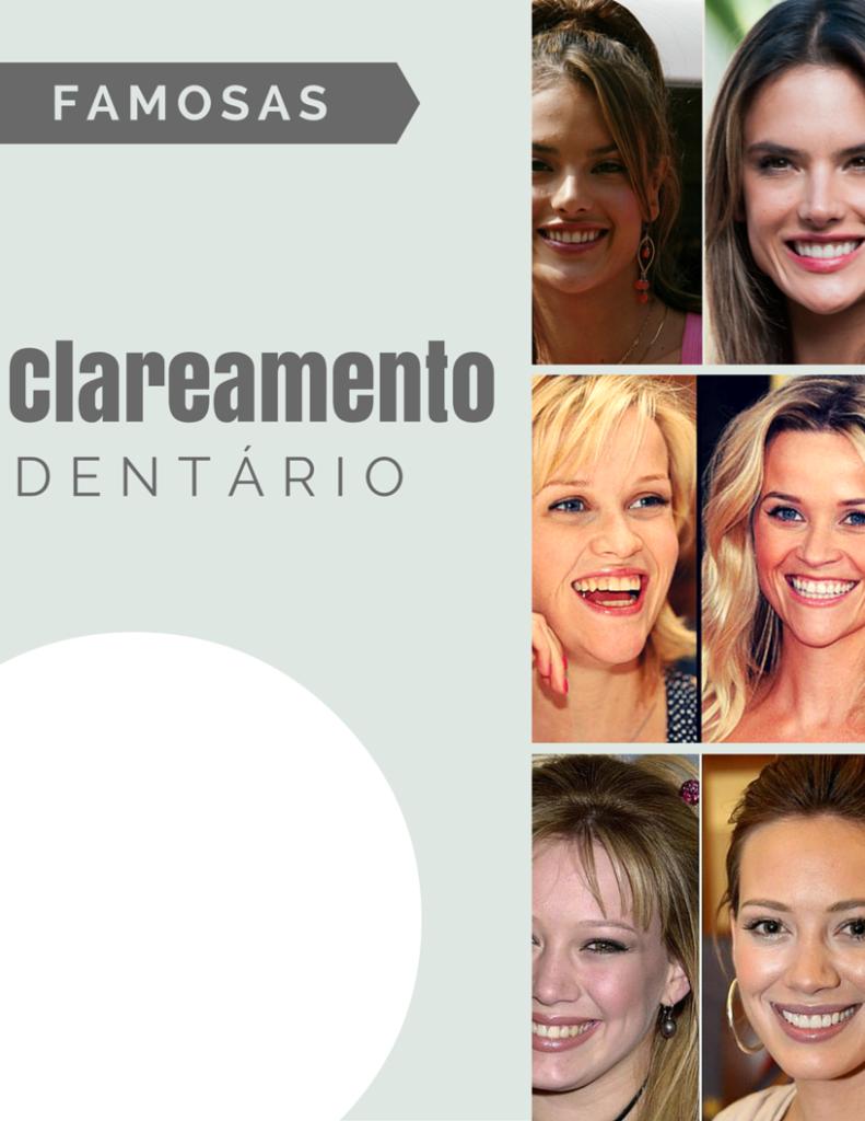 Clareamento dental das famosas chris castro 1
